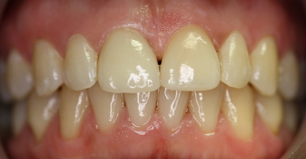 After All-ceramic Restorations