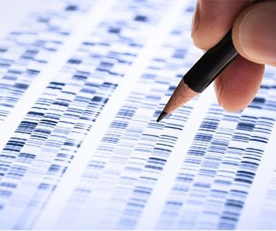 DNA-Gel
