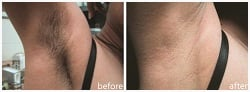 Before and after photo of Laser Hair Removal - Underarm