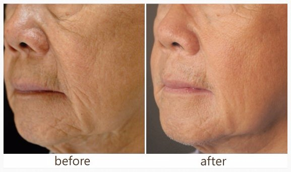 Before and after photos Laser Skin Rejuvenation - Sublative RF Rejuvenation treats fine lines and wrinkles