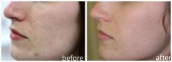 Acne Scar Reduction using Sublative RF Rejuvenation
