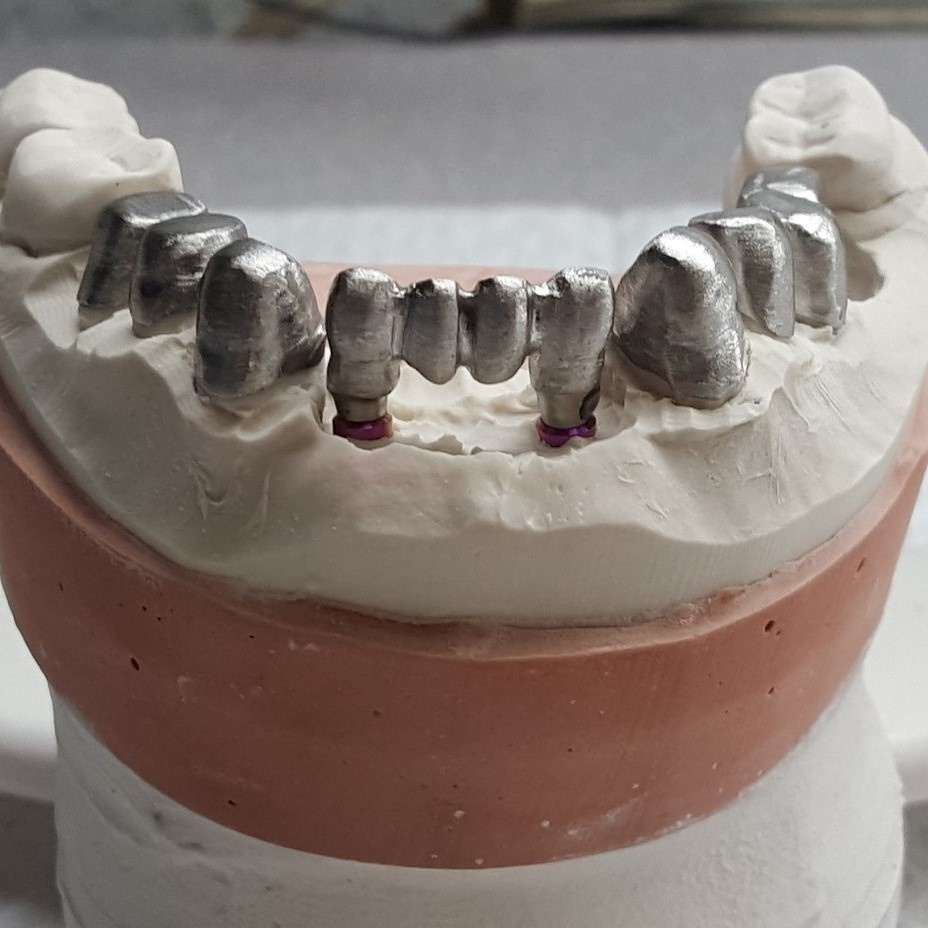 https://0201.nccdn.net/4_2/000/000/06b/a1b/Mold_with_Implant_Base-2-928x928.jpg