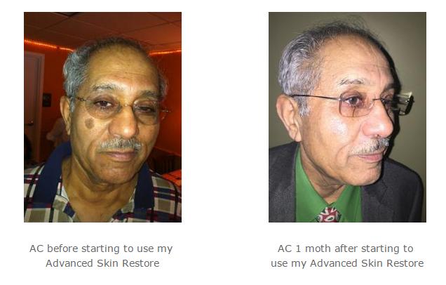 Skin Restore