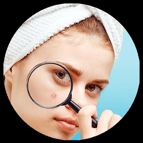 Clínica Dermis Láser - Acné